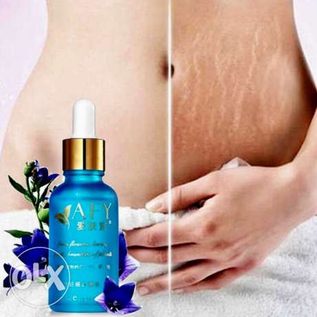 AFY Removes Stretch Marks
